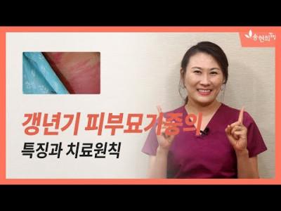 중년여성에게 나타나는 피부관리 화끈거림, 벌레기어가는 느낌, 가려움 – 피부묘기증 or 갱년기증후군?